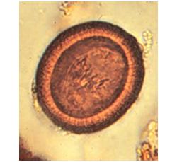 echinococcus-granulosus2