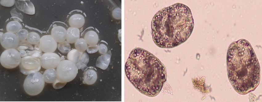 echinococcus-granulosus3